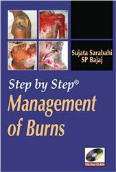 Cover Step by Step Management of Burns / with CD-ROM