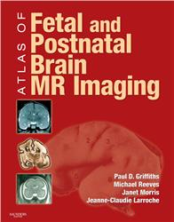 Cover Atlas of Fetal and Postnatal Brain MR