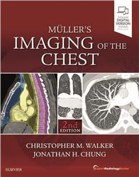 Cover Müller's Imaging of the Chest