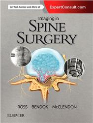 Cover Imaging in Spine Surgery