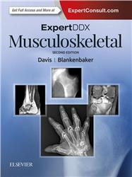 Cover ExpertDDx: Musculoskeletal