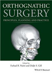 Cover Orthognathic Surgery: Principles, Planning and Practice