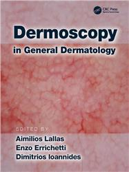 Cover Dermoscopy in General Dermatology