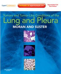 Cover Tumors and Tumor-like Conditions of the Lung and Pleura