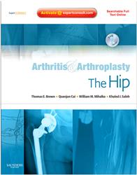 Cover Arthritis and Arthroplasty: The Hip