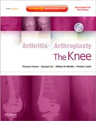 Cover Arthritis and Arthroplasty: The Knee