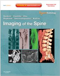 Cover Imaging of the Spine