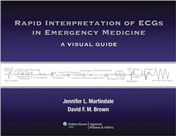 Cover Rapid Interpretation of ECGs in Emergency Medicine