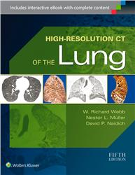 Cover High-Resolution CT of the Lung