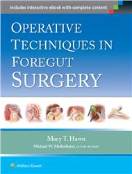 Cover Operative Techniques in Foregut Surgery