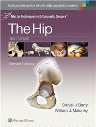 Cover Master Techniques in Orthopaedic Surgery: The Hip