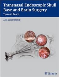 Cover Transnasal Endoscopic Skull Base and Brain Surgery