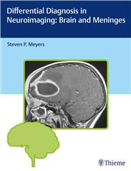 Cover Differential Diagnosis in Neuroimaging: Brain and Meninges