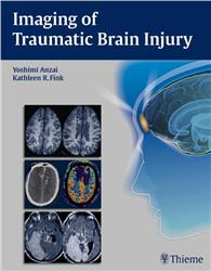 Cover Imaging of Traumatic Brain Injury