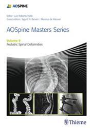 Cover AOSpine Masters Series, Volume 9: Pediatric Spinal Deformities