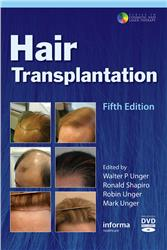 Cover Hair Transplantation