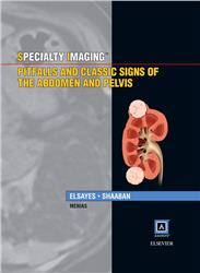 Cover Specialty Imaging: Pitfalls and Classic Signs of the Abdomen and Pelvis