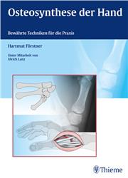 Cover Osteosynthese der Hand