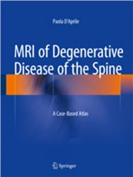 Cover MRI of Degenerative Disease of the Spine