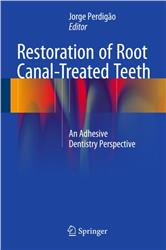 Cover Restoration of Root Canal-Treated Teeth