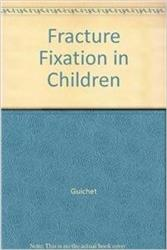 Cover Fracture Fixation in Children