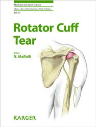 Cover Rotator Cuff Tear