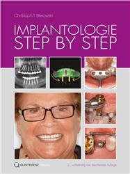 Cover Implantologie Step by Step