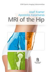 Cover MRI of the Hip