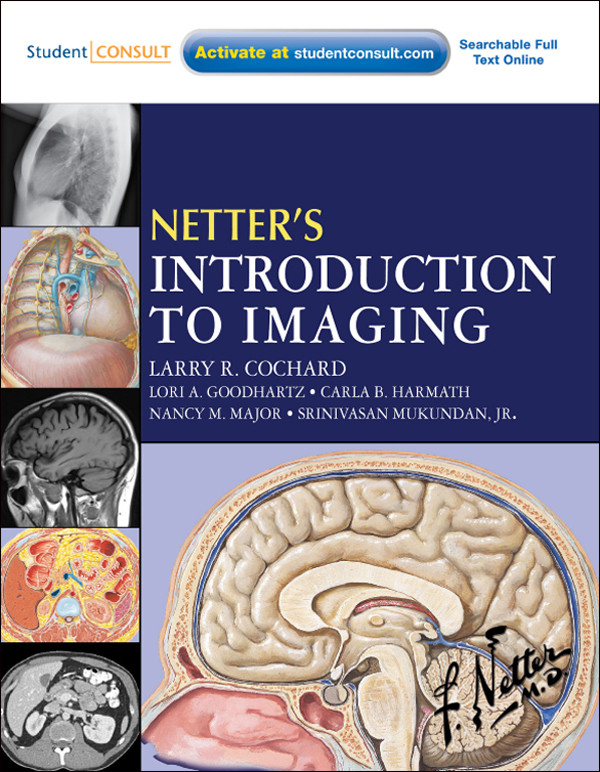 Netter's Introduction to Imaging E-Book