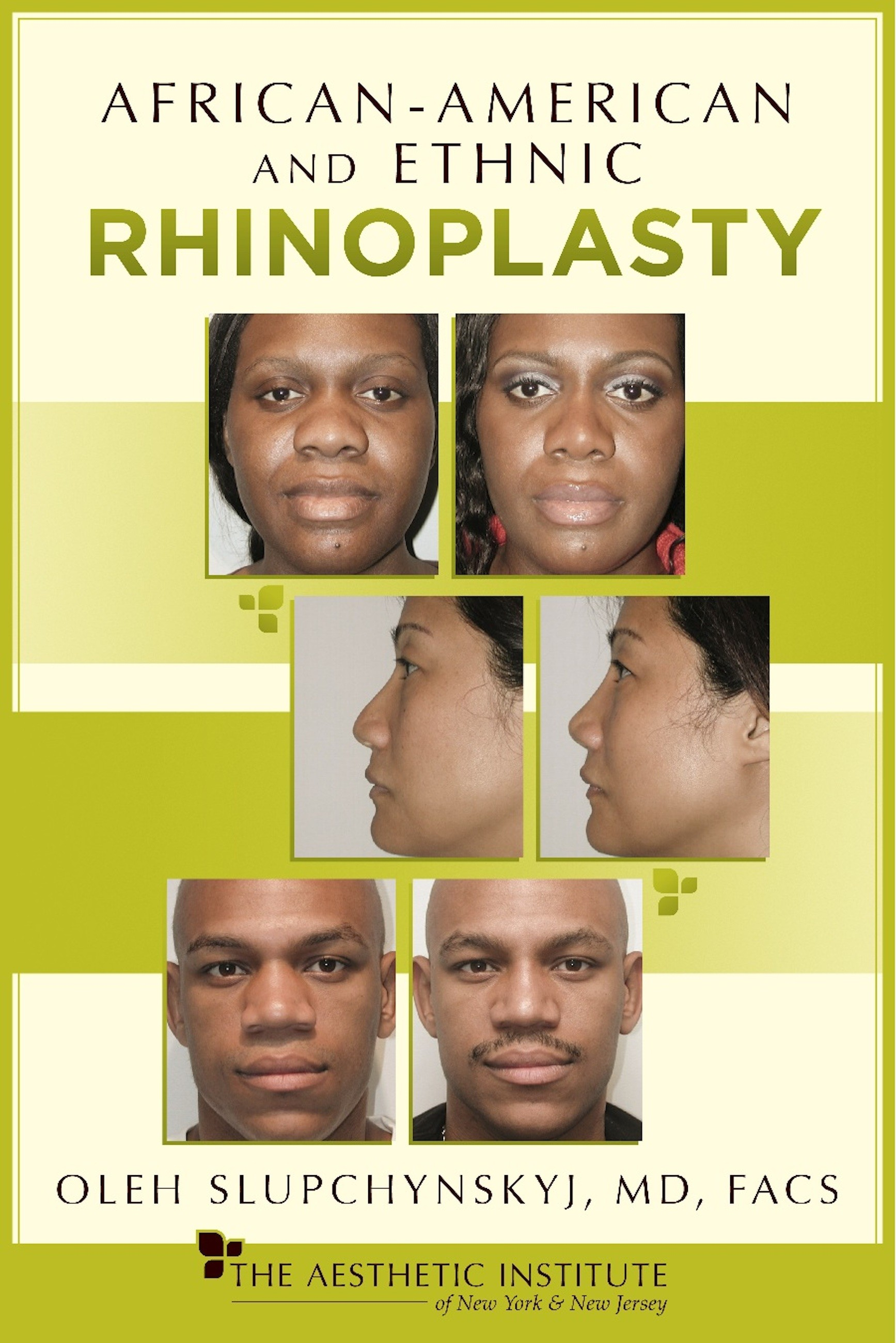 African-American and Ethnic Rhinoplasty