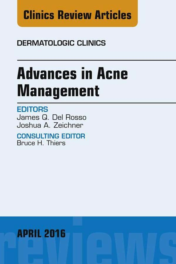 Advances in Acne Management, An Issue of Dermatologic Clinics,