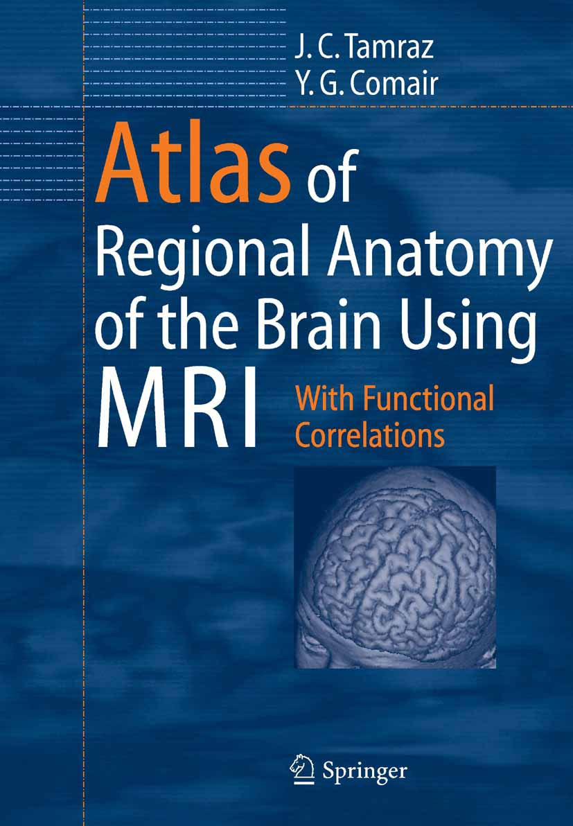 Atlas of Regional Anatomy of the Brain Using MRI - With Functional Correlations. Foreword by Hans O. Lüders