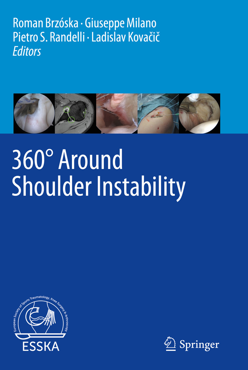 360° Around Shoulder Instability