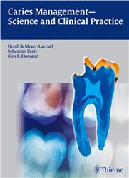 Cover Caries Management