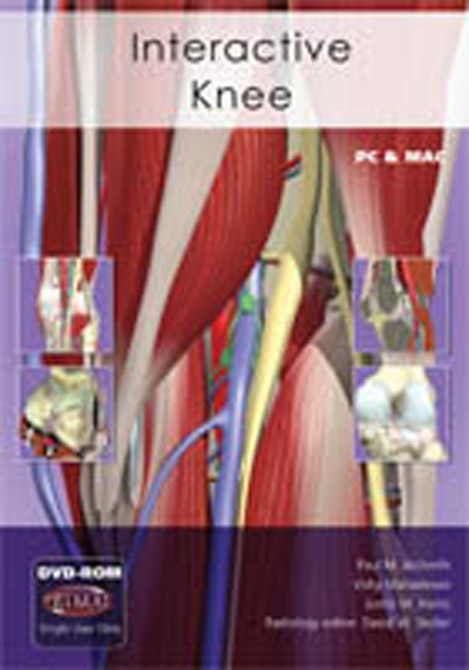 Interactive Knee DVD-ROM
