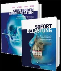 Cover Sinusbodenaugmentation & Sofortbelastung im Set