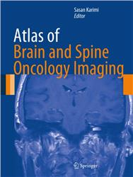 Cover Atlas of Brain and Spine Oncology Imaging