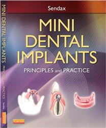 Cover Mini Dental Implants