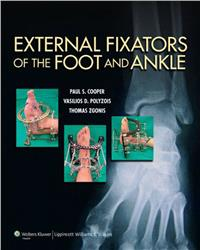 Cover External Fixators of the Foot and Ankle