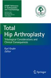 Cover Total Hip Arthroplasty