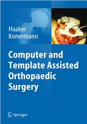 Cover Computer and Template Assisted Orthopedic Surgery