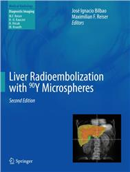 Cover Liver Radioembolization with 90Y Microspheres