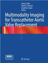 Cover Multimodality Imaging for Transcatheter Aortic Valve Replacement