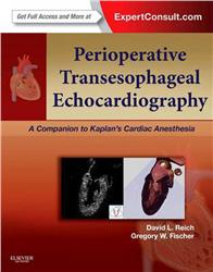 Cover Perioperative Transesophageal Echocardiography