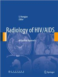 Cover Radiology of HIV/AIDS