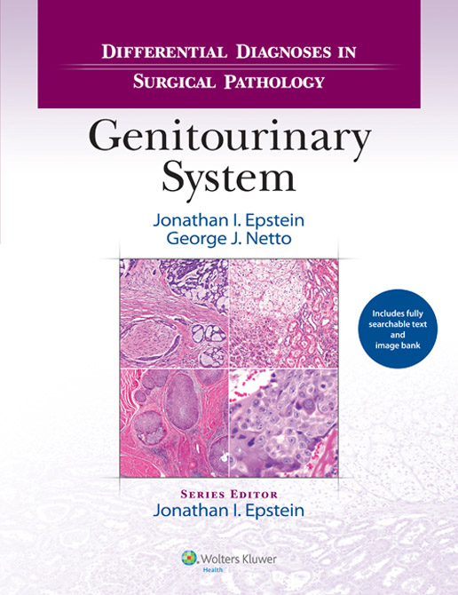 Differential Diagnoses in Surgical Pathology: Genitourinary System