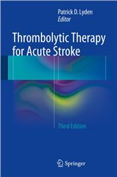 Cover Thrombolytic Therapy for Acute Stroke