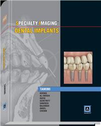 Cover Specialty Imaging: Dental Implants