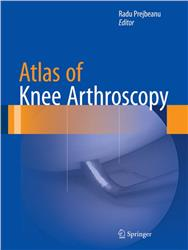 Cover Atlas of Knee Arthroscopy