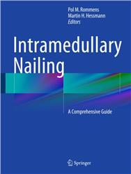 Cover Intramedullary Nailing